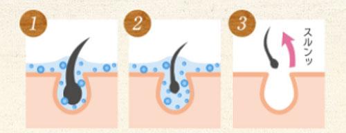 ムーモ(moomo)のムダ毛を溶かす効果